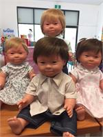 Down Syndrome dolls